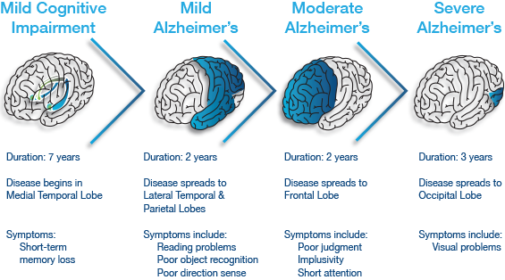 an introduction to alzheimers disease Introduction to research brainstorming tips 2 12 among such diseases, one of the most often diagnosed problems is alzheimer's disease it is impossible to cure alzheimer's disease & dementia alzheimer's association np.
